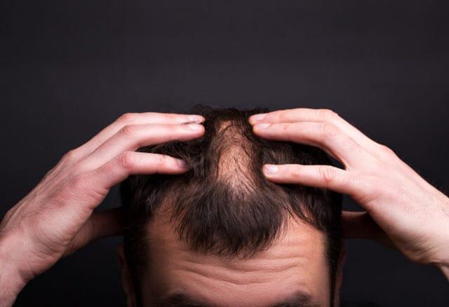 Erkeklerde Saç Dökülmesinin İlk Nedeni Nedir