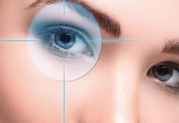 Badem Göz Estetiği Nedir