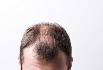 Erkeklerde En Çok Hangi Bölgede Saçlar Dökülür